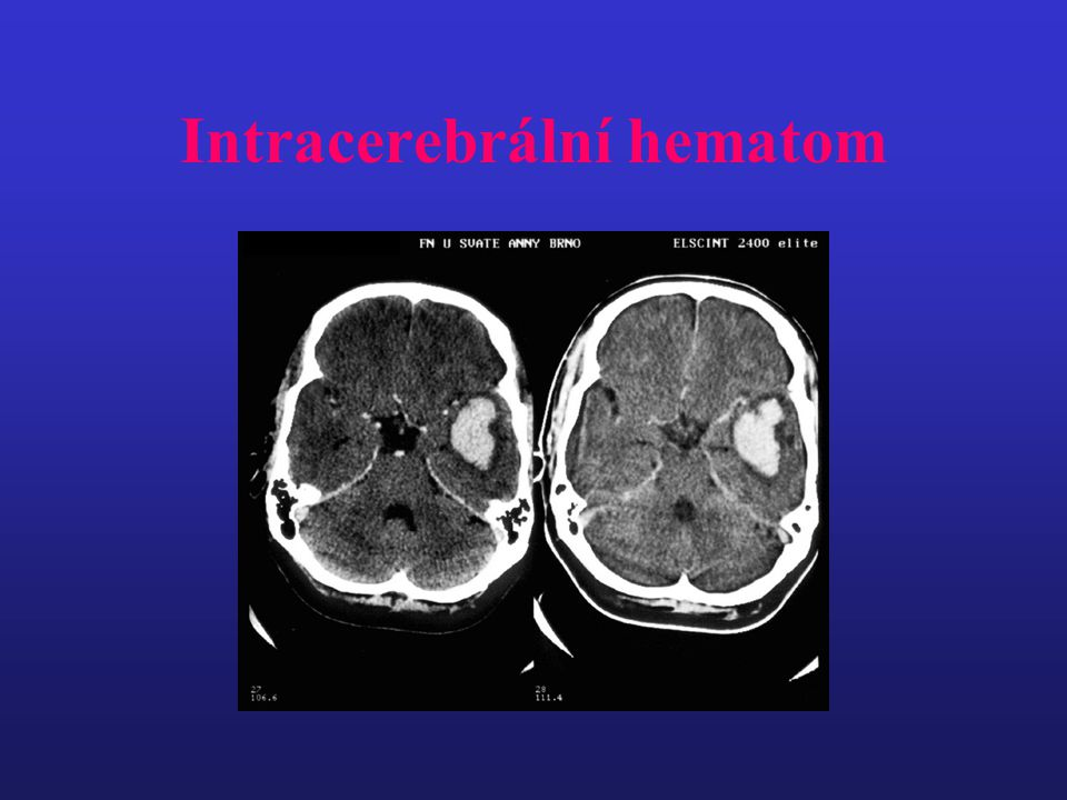 Intracerebrální hematom