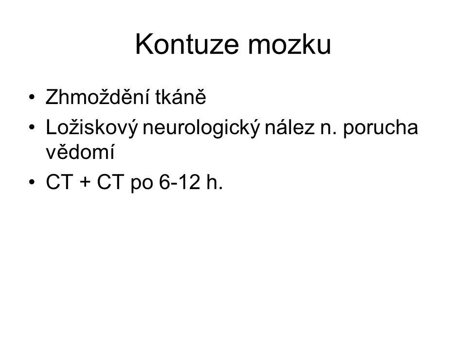 Kontuze mozku Zhmoždění tkáně Ložiskový neurologický nález n. porucha vědomí CT + CT po 6-12 h.