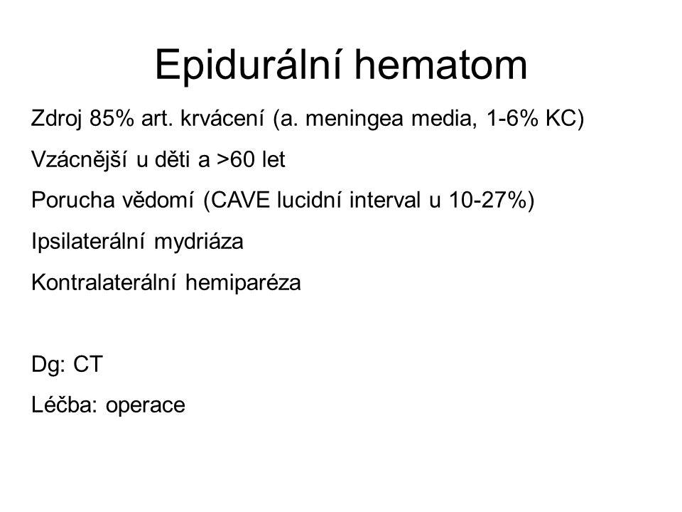 Epidurální hematom Zdroj 85% art. krvácení (a. meningea media, 1-6% KC) Vzácnější u děti a >60 let Porucha vědomí (CAVE lucidní interval u 10-27%) Ips