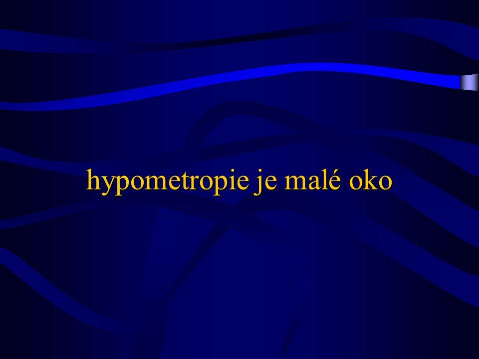 hypometropie je malé oko