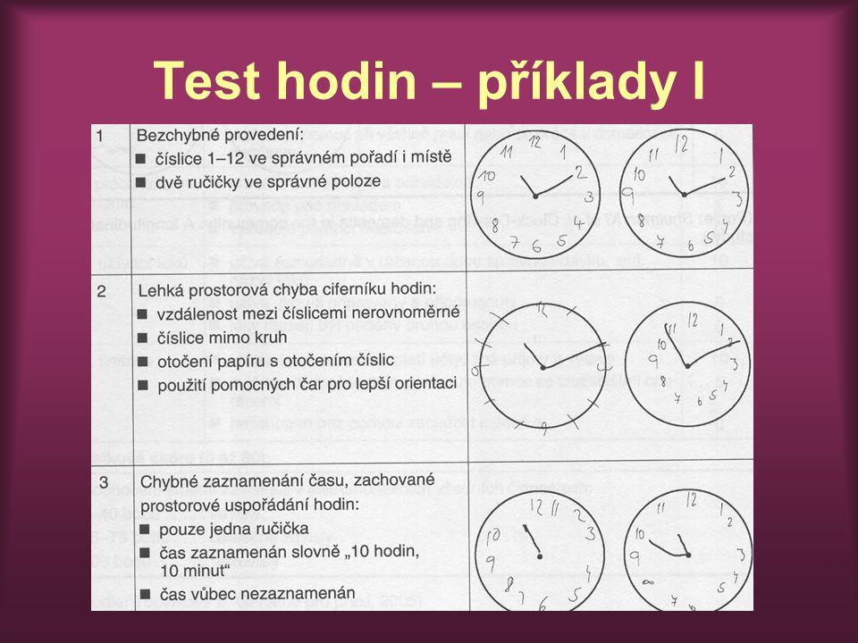 Test hodin – příklady I