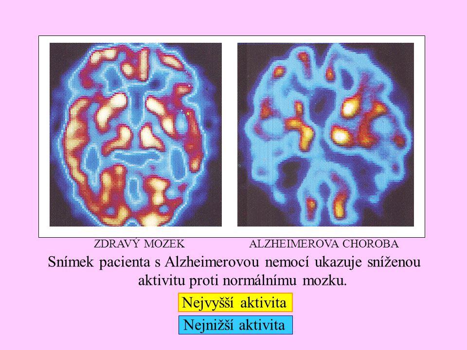 Snímek pacienta s Alzheimerovou nemocí ukazuje sníženou aktivitu proti normálnímu mozku. Nejvyšší aktivita Nejnižší aktivita ALZHEIMEROVA CHOROBAZDRAV