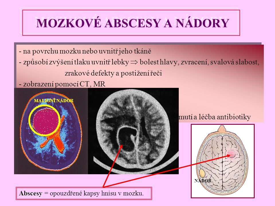 - na povrchu mozku nebo uvnitř jeho tkáně - způsobí zvýšení tlaku uvnitř lebky  bolest hlavy, zvracení, svalová slabost, zrakové defekty a postižení