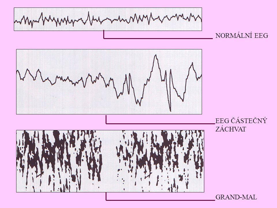 NORMÁLNÍ EEG EEG ČÁSTEČNÝ ZÁCHVAT GRAND-MAL