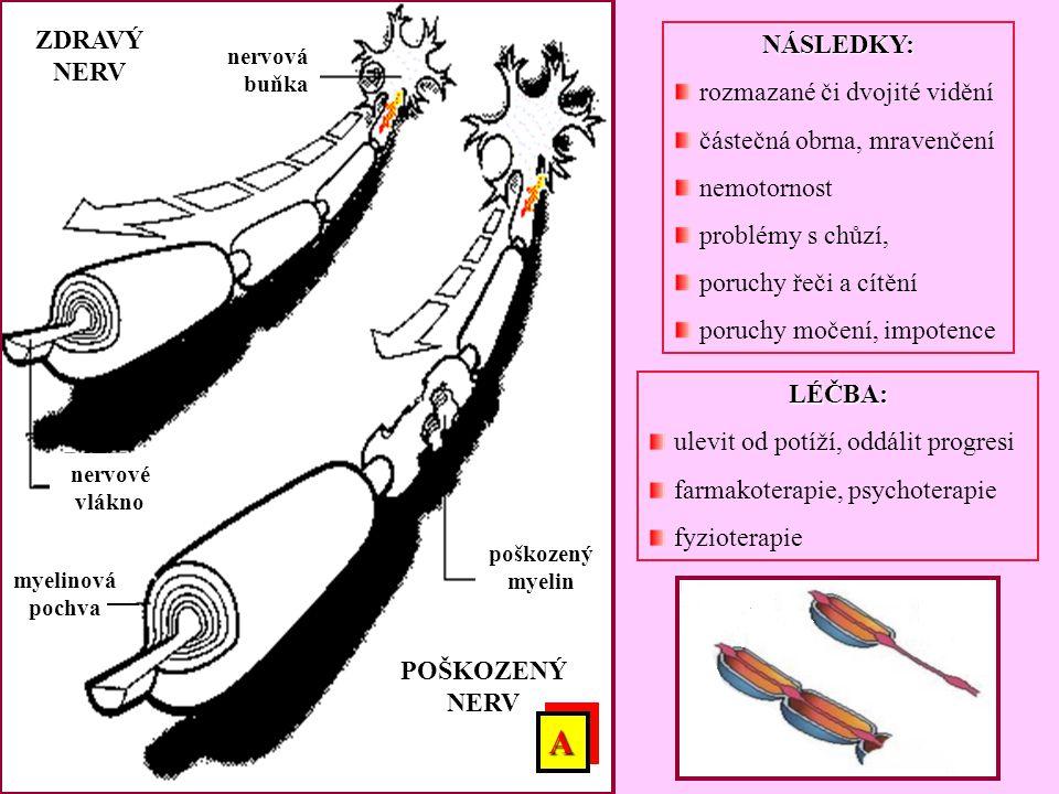 POŠKOZENÝ NERV ZDRAVÝ NERV myelinová pochva nervová buňka nervové vlákno poškozený myelin LÉČBA: ulevit od potíží, oddálit progresi farmakoterapie, ps