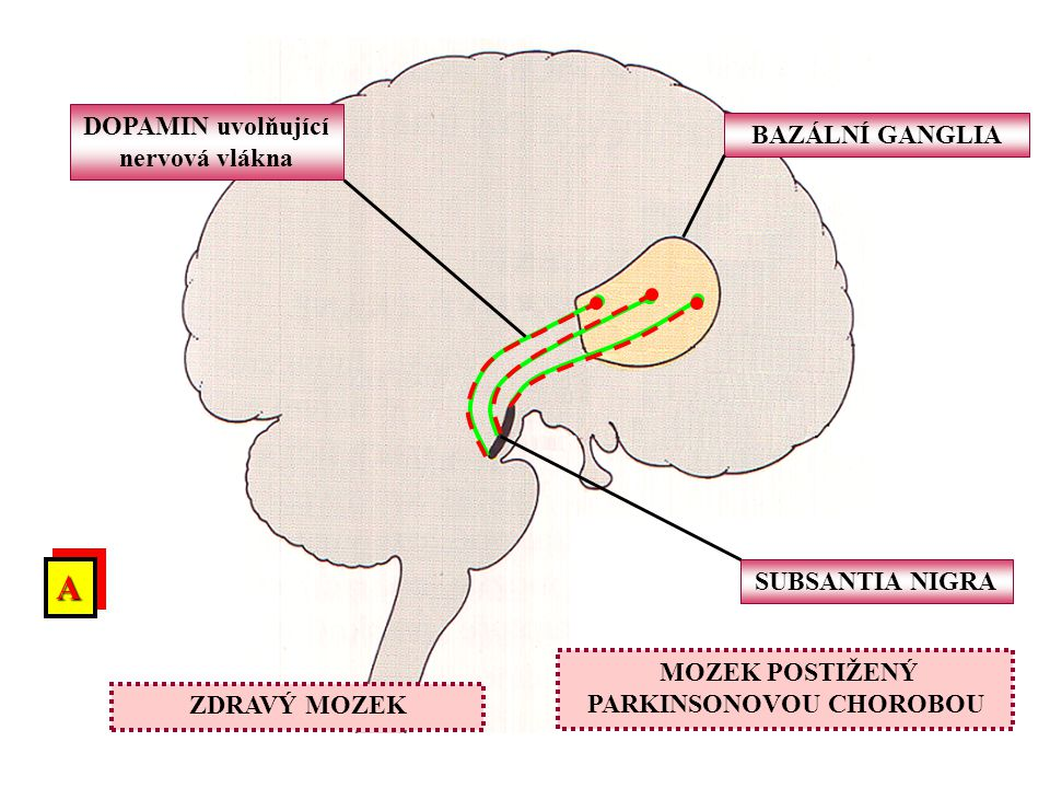 BAZÁLNÍ GANGLIA SUBSANTIA NIGRA DOPAMIN uvolňující nervová vlákna MOZEK POSTIŽENÝ PARKINSONOVOU CHOROBOU ZDRAVÝ MOZEK AA