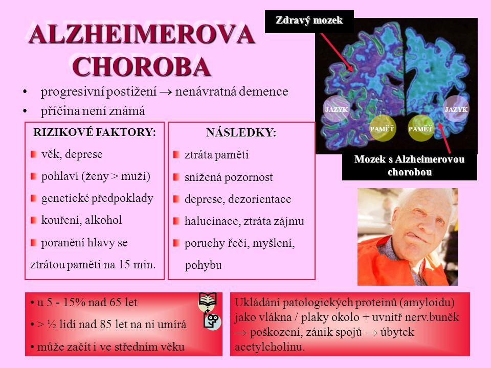 progresivní postižení  nenávratná demence příčina není známá ALZHEIMEROVA CHOROBA u 5 - 15% nad 65 let > ½ lidí nad 85 let na ni umírá může začít i v