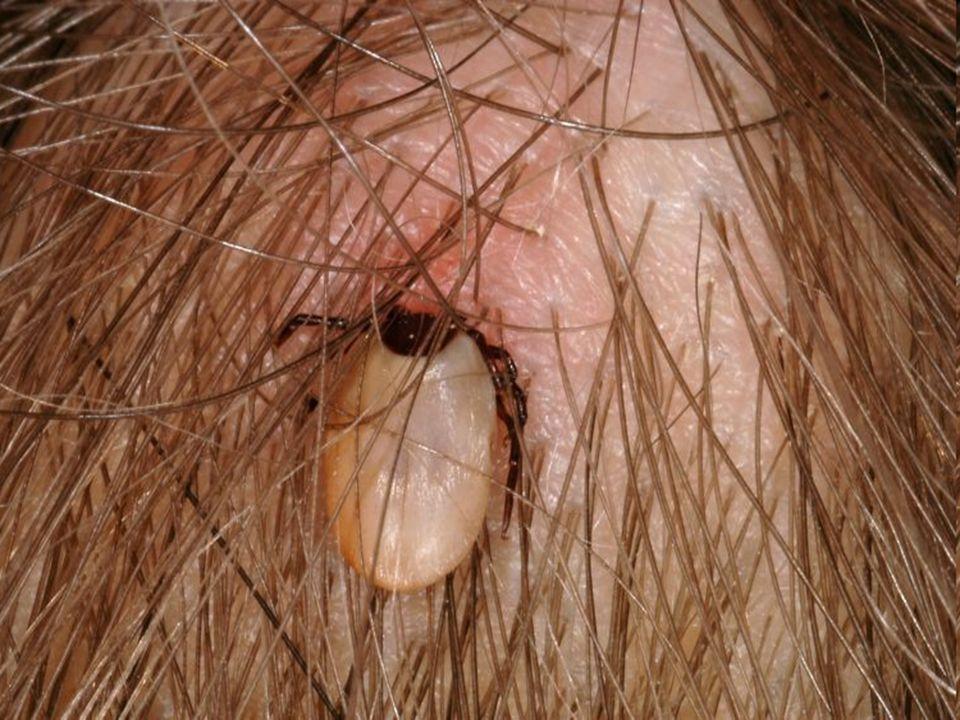 Klíště obecné - parazitický druh - hlavohruď srůstá se zadečkem - ústní ústrojí bodavě sací - samička saje krev a vypouští látku, která brání srážení krve - přenáší dvě nebezpečné nemoci zánět mozkových blan – vir borelióza - bakterie objem se zvětší až 320 X