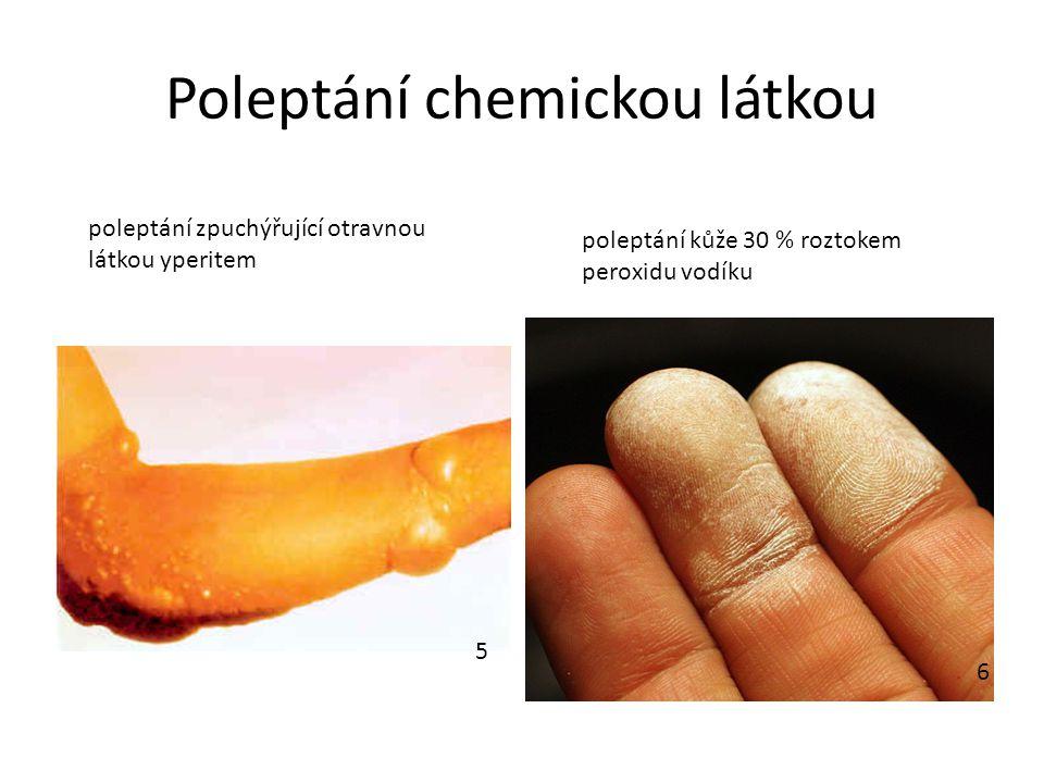 Poleptání chemickou látkou poleptání zpuchýřující otravnou látkou yperitem poleptání kůže 30 % roztokem peroxidu vodíku 5 6