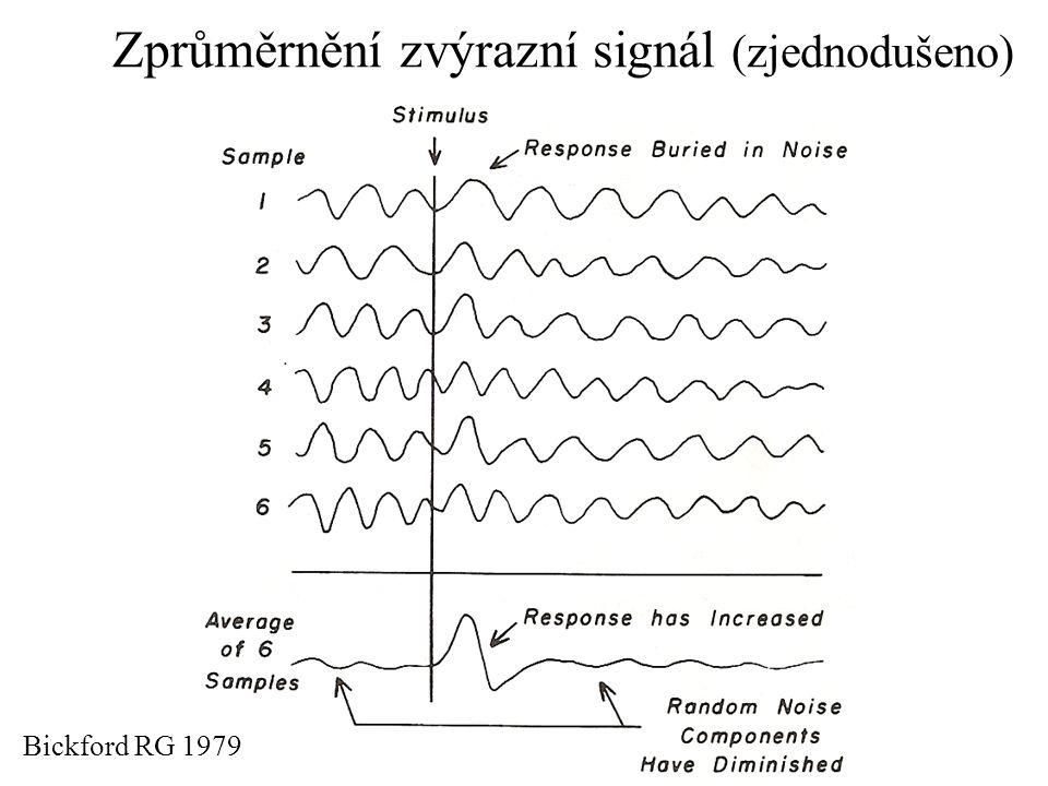 Metodika hodnocení EP: přítomnost EP identifikace různých složek EP latence jednotlivých vln (vrcholové) mezivrcholové latence amplituda tvar EP Srovnáváme s normativními údaji podle věku, pohlaví… –z literatury –s vlastní kontrolní skupinou laboratoře