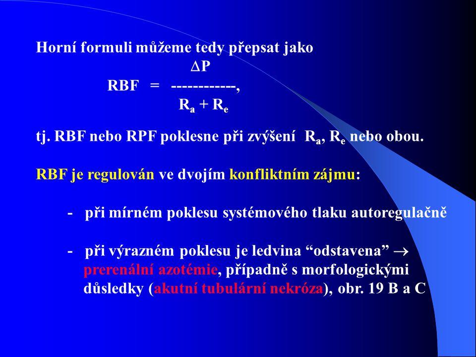 Horní formuli můžeme tedy přepsat jako  P RBF = ------------, R a + R e tj.