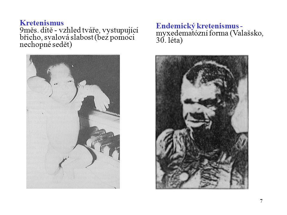 7 Kretenismus 9měs. dítě - vzhled tváře, vystupující břicho, svalová slabost (bez pomoci nechopné sedět) Endemický kretenismus - myxedematózní forma (