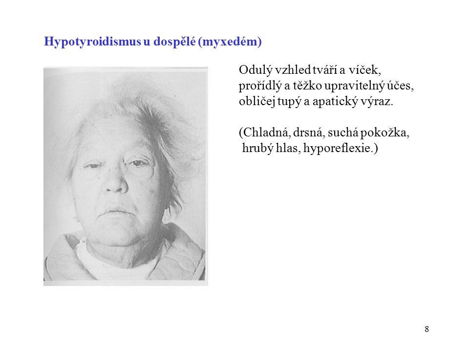 8 Hypotyroidismus u dospělé (myxedém) Odulý vzhled tváří a víček, prořídlý a těžko upravitelný účes, obličej tupý a apatický výraz. (Chladná, drsná, s