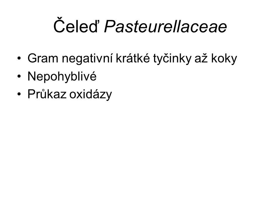 Čeleď Pasteurellaceae Gram negativní krátké tyčinky až koky Nepohyblivé Průkaz oxidázy