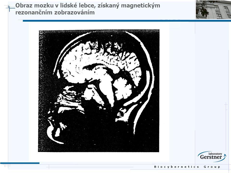 B i o c y b e r n e t i c s G r o u p Obraz mozku v lidské lebce, získaný magnetickým rezonančním zobrazováním