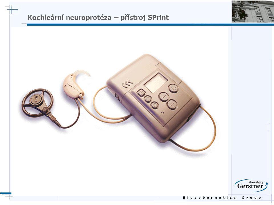 B i o c y b e r n e t i c s G r o u p Kochleární neuroprotéza – přístroj SPrint