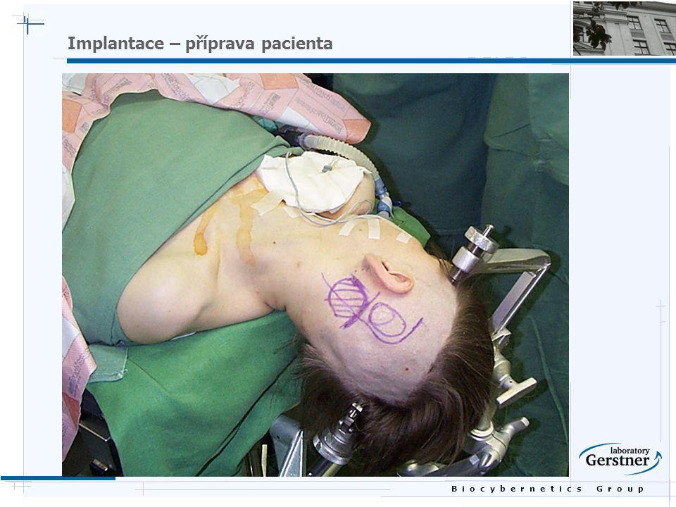 B i o c y b e r n e t i c s G r o u p Implantace – příprava pacienta