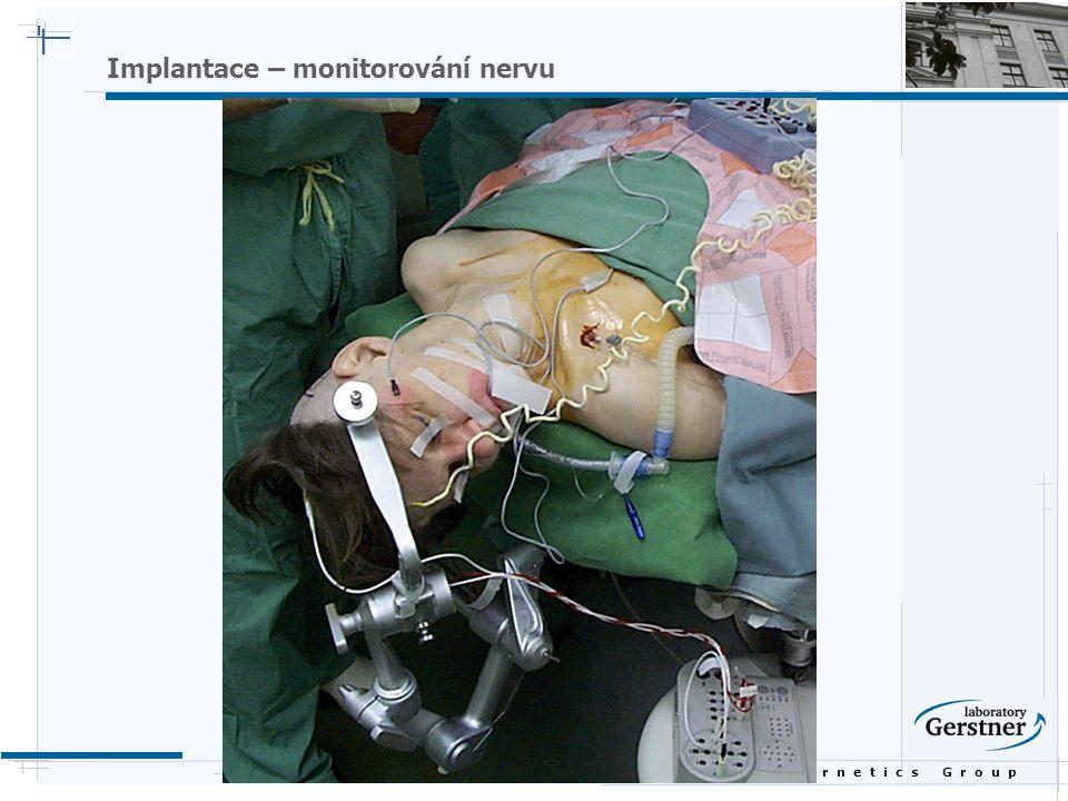 B i o c y b e r n e t i c s G r o u p Implantace – monitorování nervu