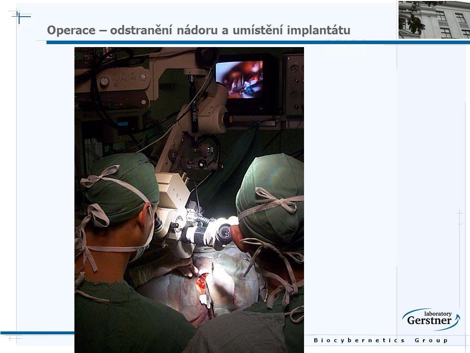 B i o c y b e r n e t i c s G r o u p Operace – odstranění nádoru a umístění implantátu