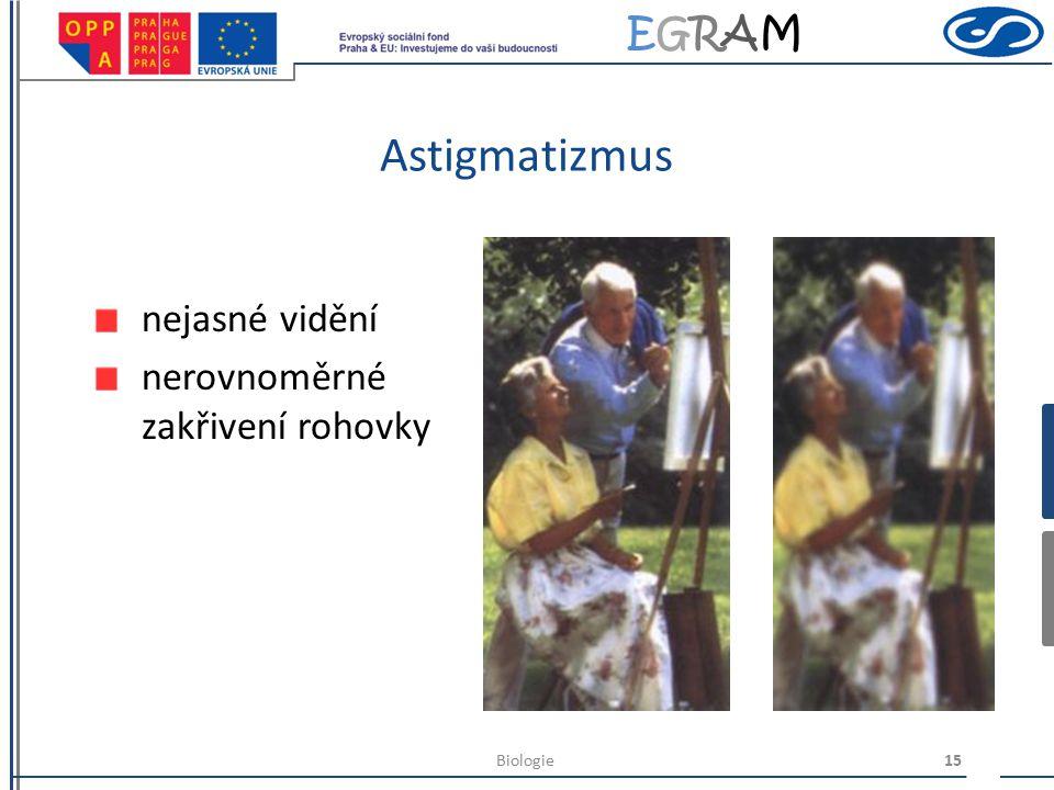 EGRAMEGRAM Zrakové vady dalekozrakost obraz vzniká za sítnicí špatně vidí do blízka 14Biologie