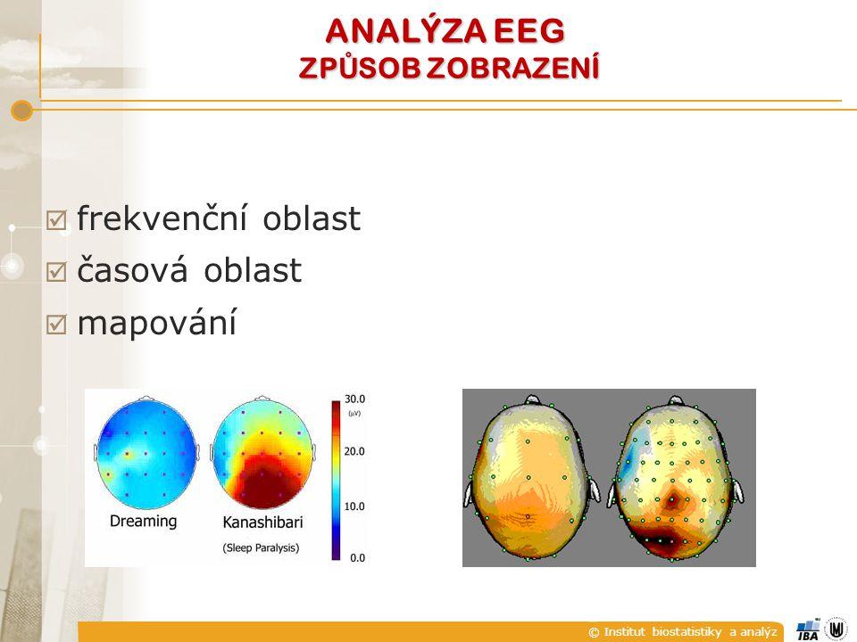 © Institut biostatistiky a analýz  frekvenční oblast  časová oblast  mapování ANALÝZA EEG ZP Ů SOB ZOBRAZENÍ