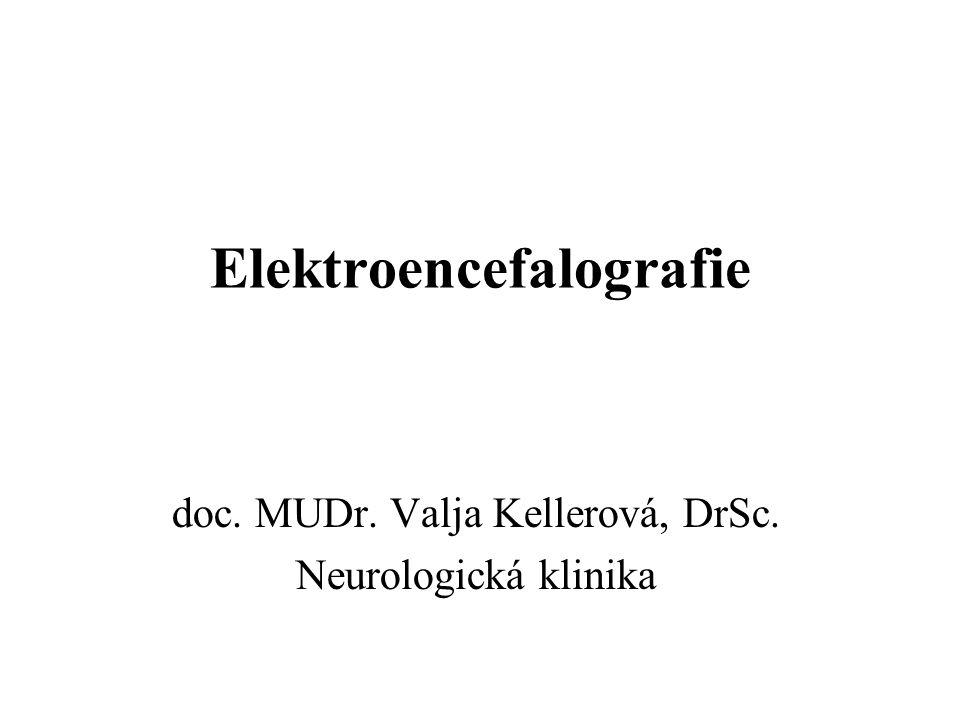 Princip EEG EEG je záznam mozkových bioelektrických potenciálů z povrchu hlavy Postup: –snímání –zesílení –záznam (min.