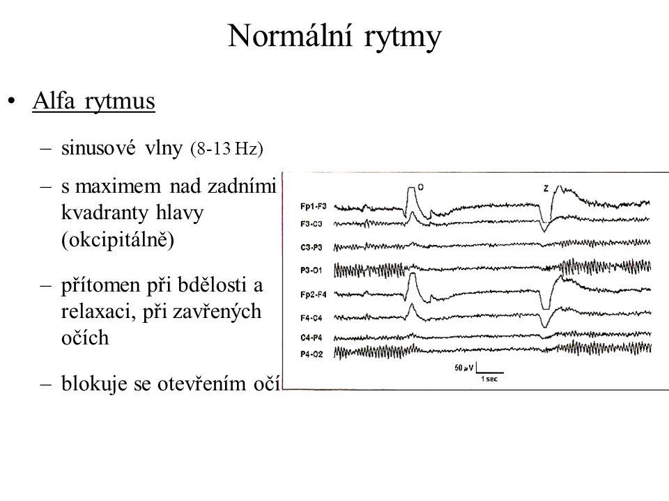 Normální rytmy Alfa rytmus –sinusové vlny (8-13 Hz) –s maximem nad zadními kvadranty hlavy (okcipitálně) –přítomen při bdělosti a relaxaci, při zavřen