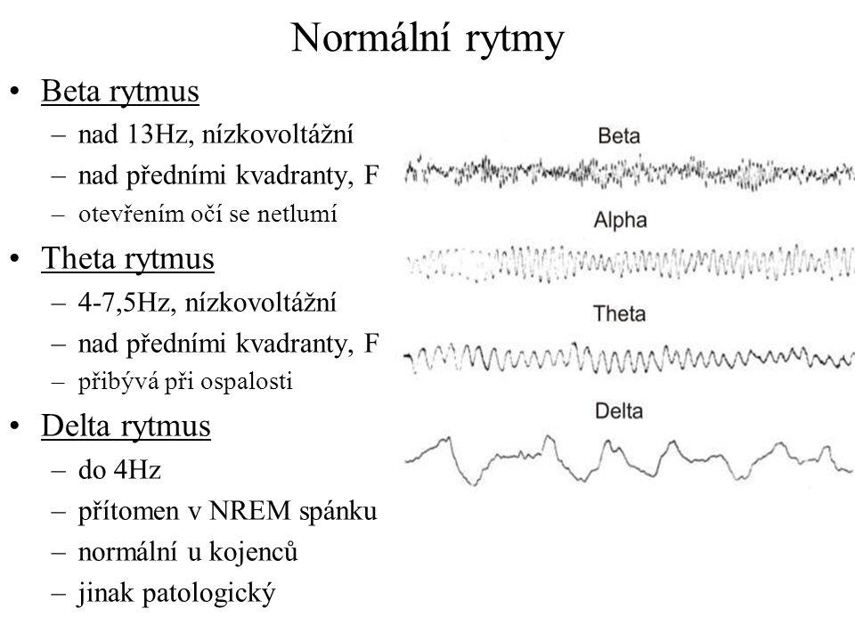 Normální rytmy Beta rytmus –nad 13Hz, nízkovoltážní –nad předními kvadranty, F –otevřením očí se netlumí Theta rytmus –4-7,5Hz, nízkovoltážní –nad pře
