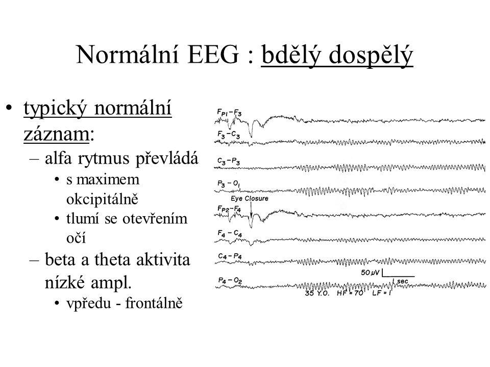 Normální EEG : bdělý dospělý typický normální záznam: –alfa rytmus převládá s maximem okcipitálně tlumí se otevřením očí –beta a theta aktivita nízké