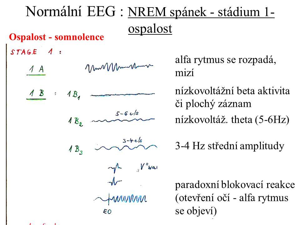 alfa rytmus se rozpadá, mizí nízkovoltážní beta aktivita či plochý záznam nízkovoltáž. theta (5-6Hz) 3-4 Hz střední amplitudy paradoxní blokovací reak
