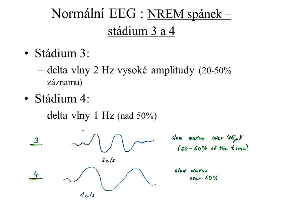 Normální EEG : NREM spánek – stádium 3 a 4 Stádium 3: –delta vlny 2 Hz vysoké amplitudy (20-50% záznamu) Stádium 4: –delta vlny 1 Hz (nad 50%)