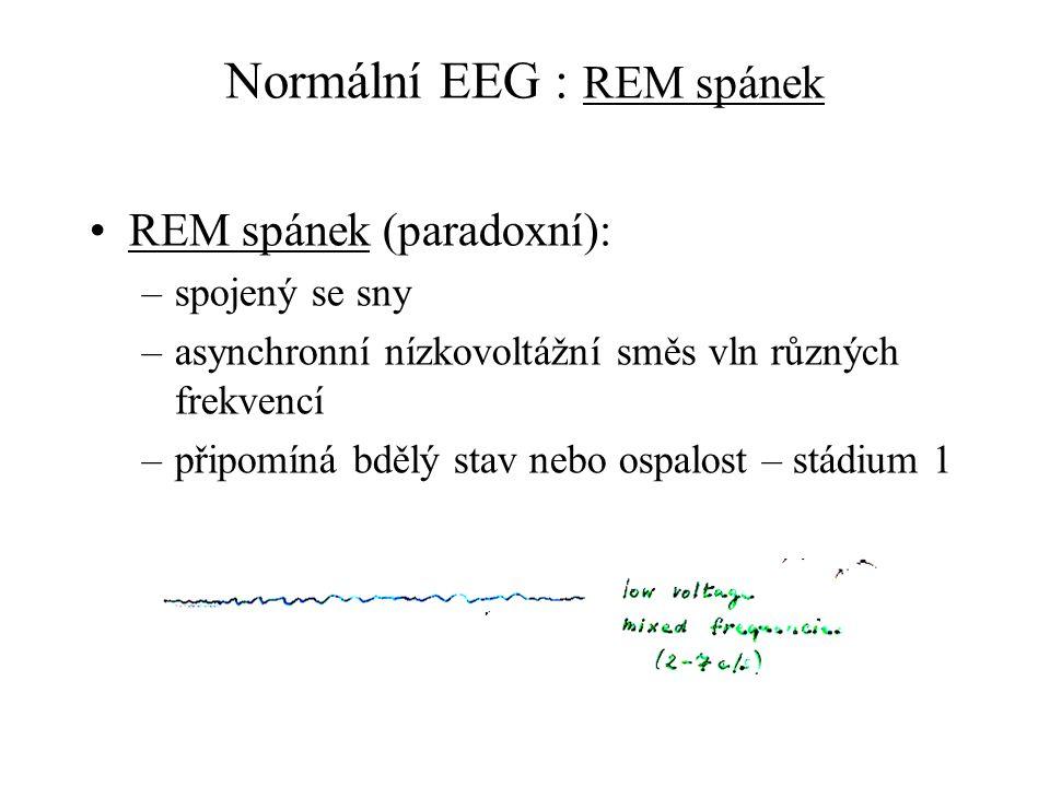 Normální EEG : REM spánek REM spánek (paradoxní): –spojený se sny –asynchronní nízkovoltážní směs vln různých frekvencí –připomíná bdělý stav nebo osp