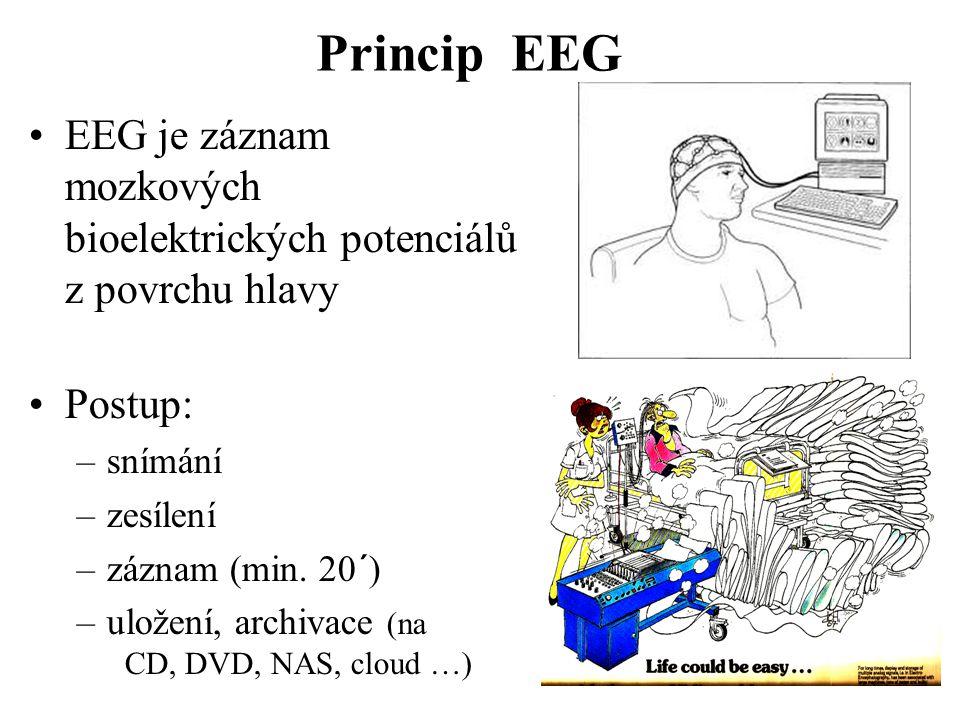 Princip EEG EEG je záznam mozkových bioelektrických potenciálů z povrchu hlavy Postup: –snímání –zesílení –záznam (min. 20´) –uložení, archivace (na C