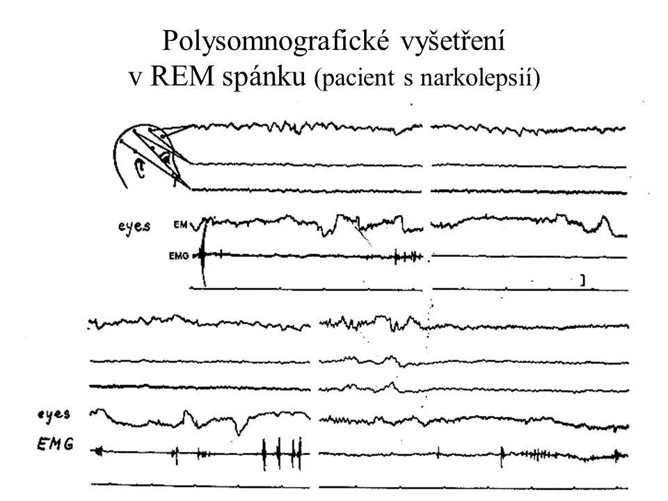 Polysomnografické vyšetření v REM spánku (pacient s narkolepsií)