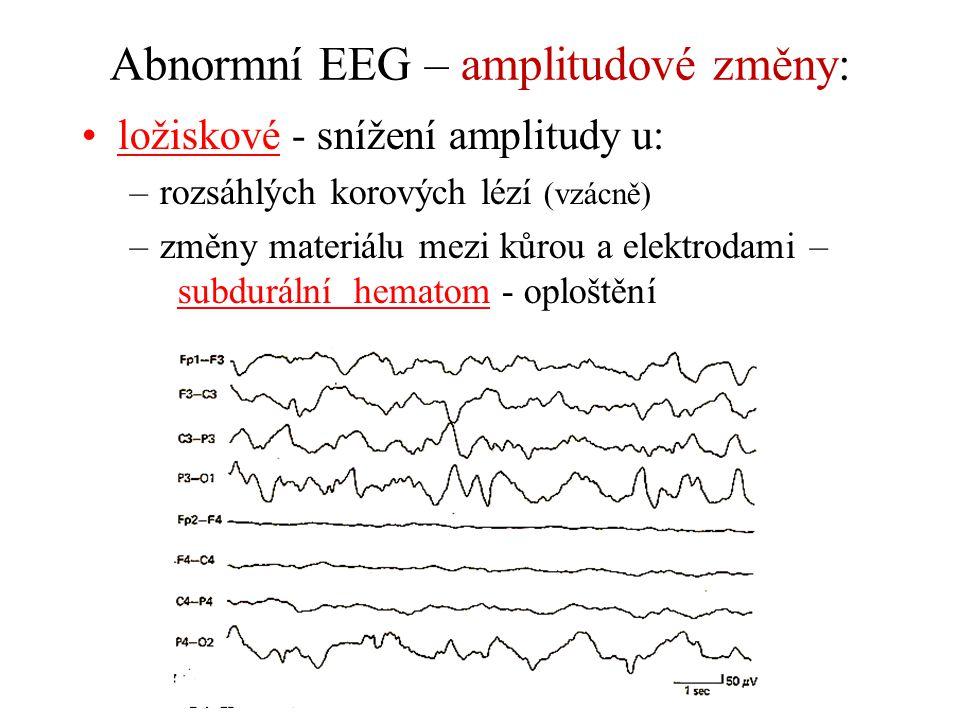 Abnormní EEG – amplitudové změny: ložiskové - snížení amplitudy u: –rozsáhlých korových lézí (vzácně) –změny materiálu mezi kůrou a elektrodami – subd