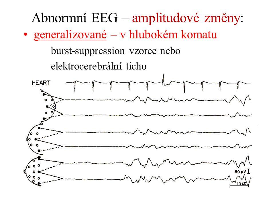 Abnormní EEG – amplitudové změny: generalizované – v hlubokém komatu burst-suppression vzorec nebo elektrocerebrální ticho