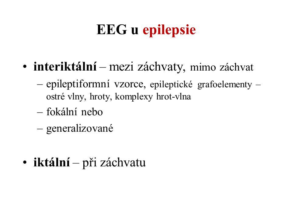 EEG u epilepsie interiktální – mezi záchvaty, mimo záchvat –epileptiformní vzorce, epileptické grafoelementy – ostré vlny, hroty, komplexy hrot-vlna –