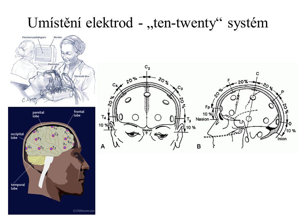 Záznam EEG křivka se registruje/přepočítává jako rozdíl potenciálů mezi 2 elektrodami (průběh změny voltáže v čase) svod = záznam z 1 páru elektrod zapojení ( více svodů ): –bipolární –monopolární