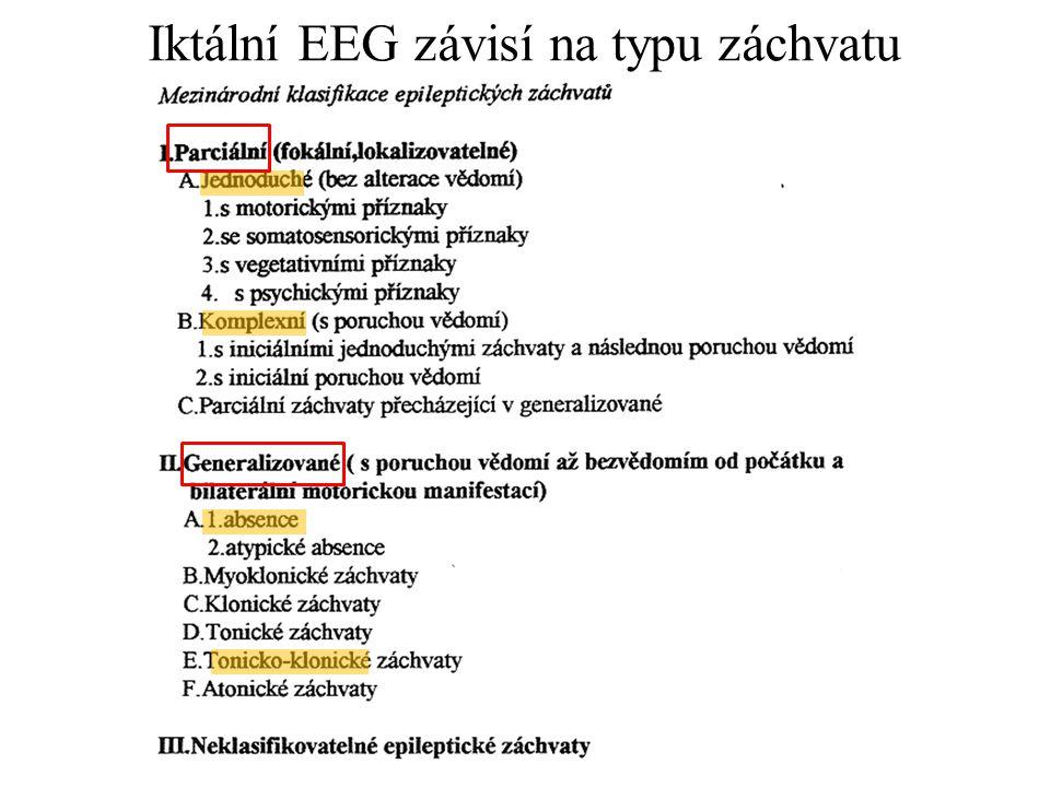 Iktální EEG závisí na typu záchvatu