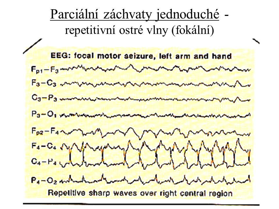 Parciální záchvaty jednoduché - repetitivní ostré vlny (fokální)
