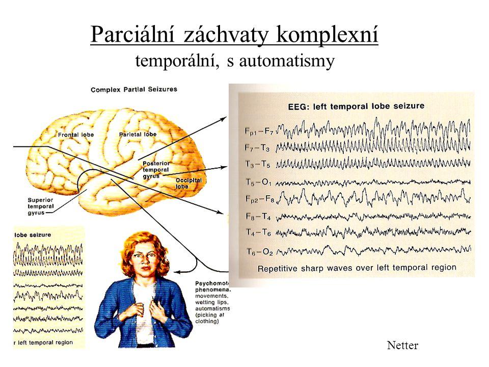 Parciální záchvaty komplexní temporální, s automatismy Netter