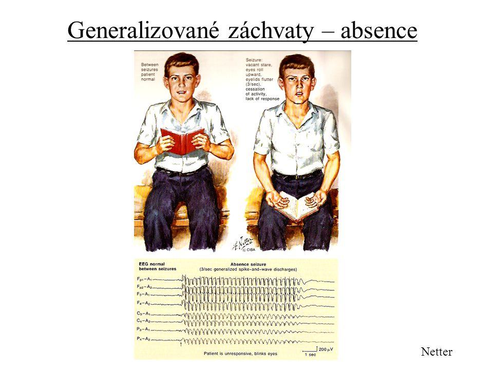 Generalizované záchvaty – absence Netter