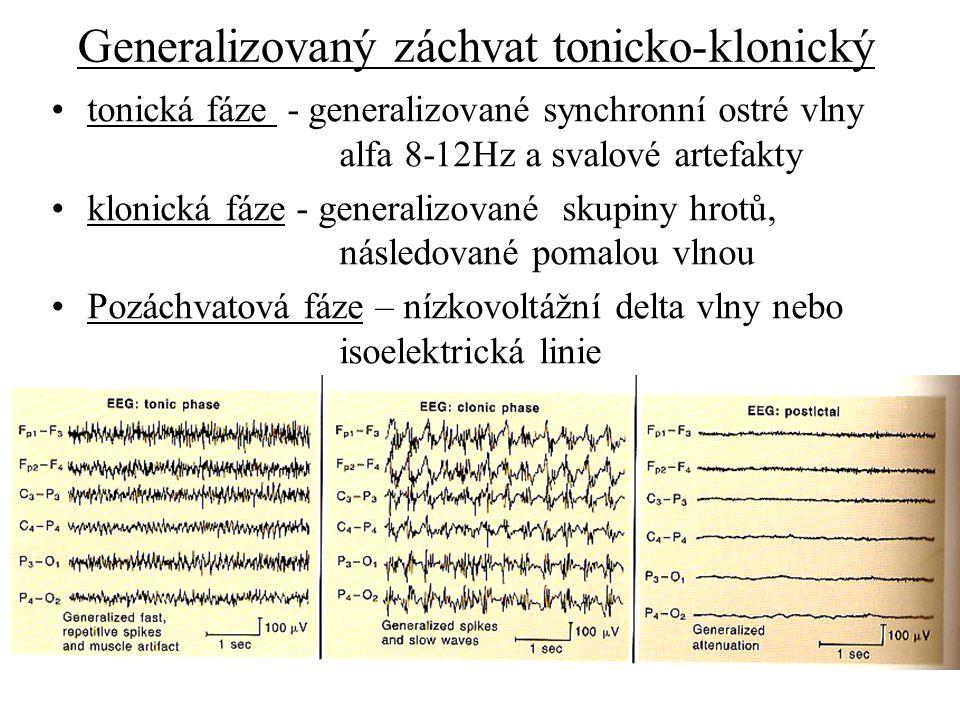 Generalizovaný záchvat tonicko-klonický tonická fáze - generalizované synchronní ostré vlny alfa 8-12Hz a svalové artefakty klonická fáze - generalizo