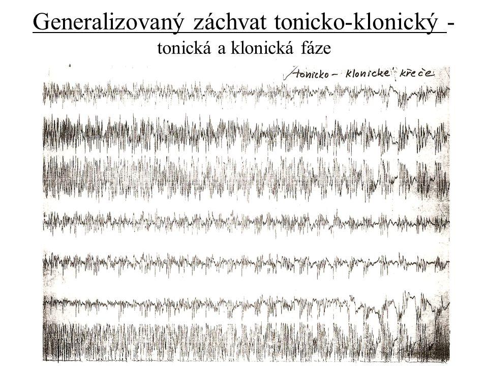 Generalizovaný záchvat tonicko-klonický - tonická a klonická fáze