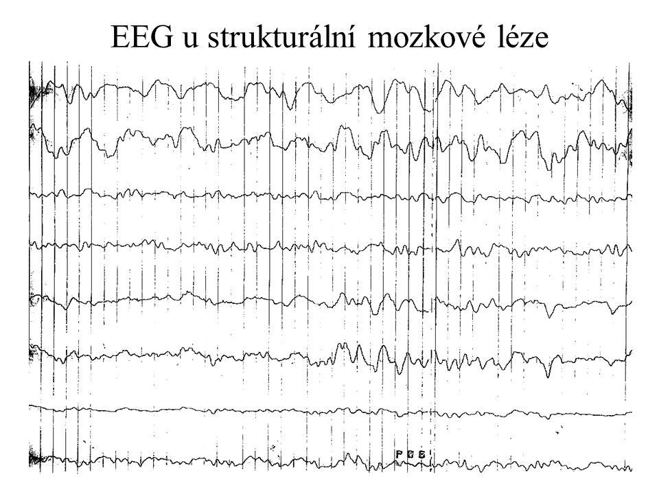EEG u strukturální mozkové léze