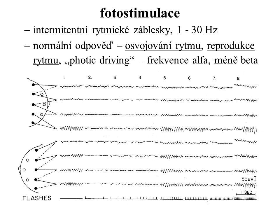 """fotostimulace –intermitentní rytmické záblesky, 1 - 30 Hz –normální odpověď – osvojování rytmu, reprodukce rytmu, """"photic driving"""" – frekvence alfa, m"""