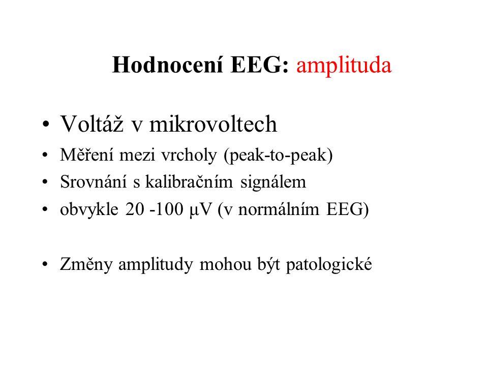 Hodnocení EEG: amplituda Voltáž v mikrovoltech Měření mezi vrcholy (peak-to-peak) Srovnání s kalibračním signálem obvykle 20 -100 μV (v normálním EEG)