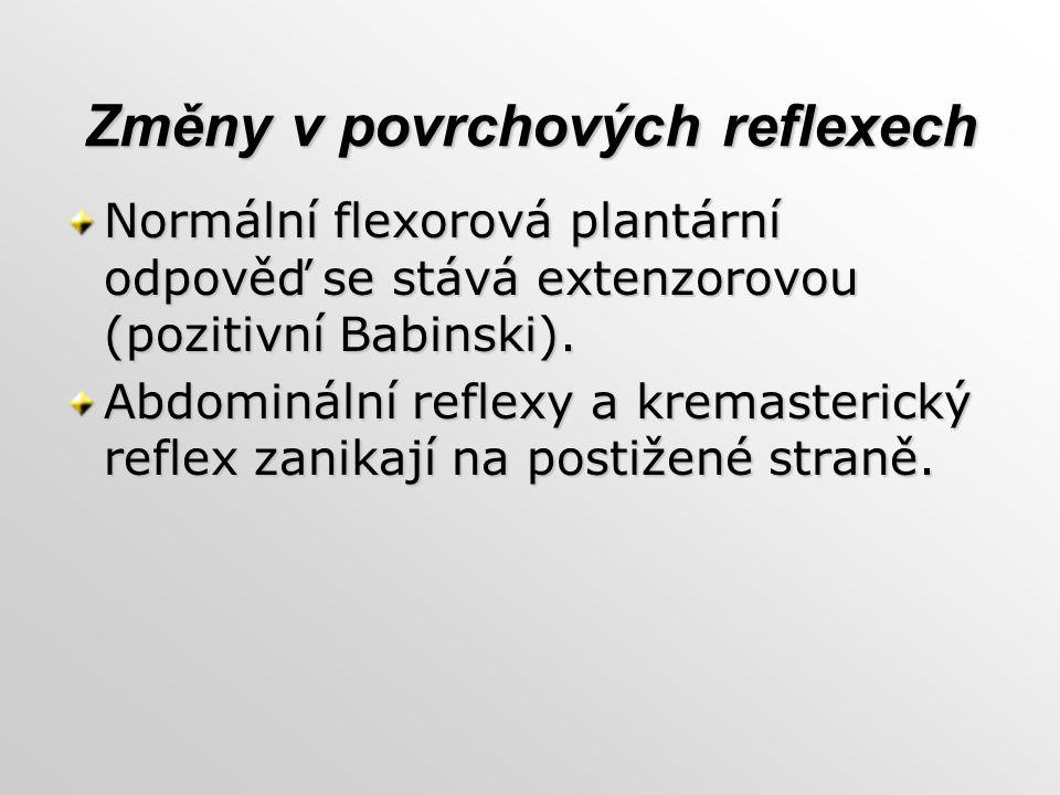 Změny v povrchových reflexech Normální flexorová plantární odpověď se stává extenzorovou (pozitivní Babinski). Abdominální reflexy a kremasterický ref