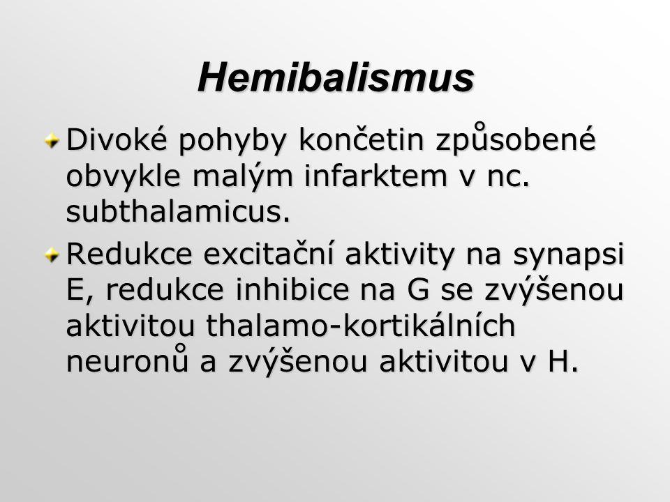 Hemibalismus Divoké pohyby končetin způsobené obvykle malým infarktem v nc. subthalamicus. Redukce excitační aktivity na synapsi E, redukce inhibice n