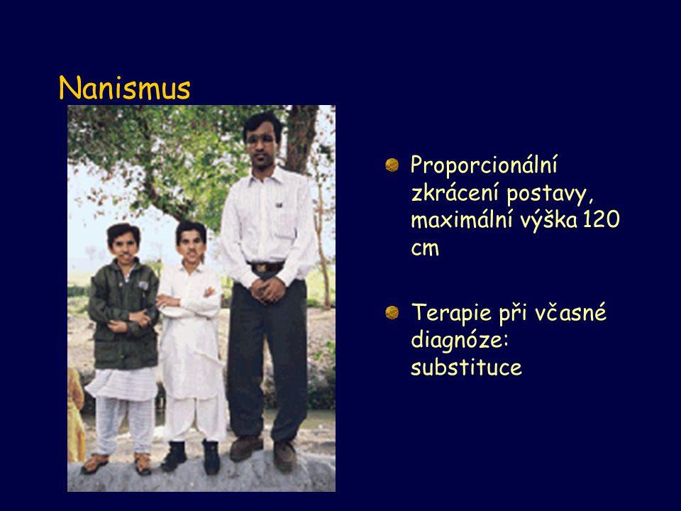 Nanismus Proporcionální zkrácení postavy, maximální výška 120 cm Terapie při včasné diagnóze: substituce